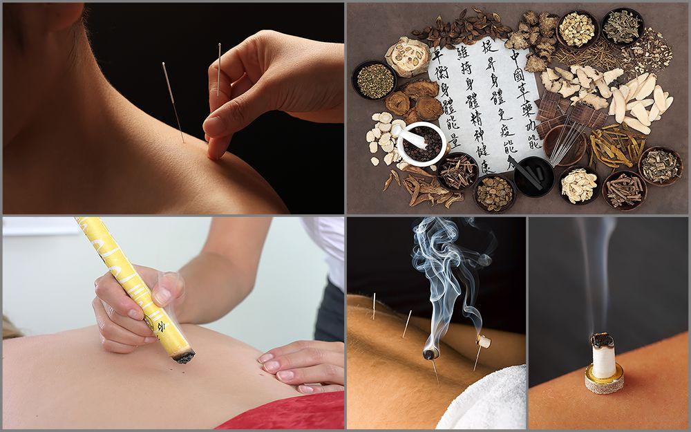 kollage-akupunktur-1000px